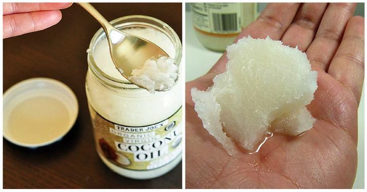 Olio di cocco e bicarbonato – per una pellesana